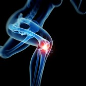 http://109.203.102.121/~wwwkneeandhipco/wp-content/uploads/2015/11/26850082-woman-having-acute-pain-in-the-knee.jpg