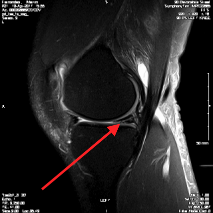 http://109.203.102.121/~wwwkneeandhipco/wp-content/uploads/2017/02/5.-Meniscal-Tear-on-MRI.png